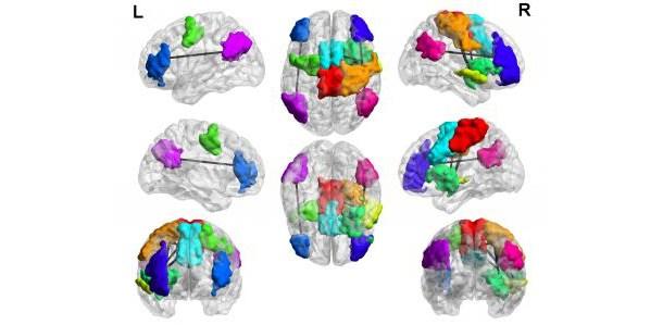 cerebro-gamer