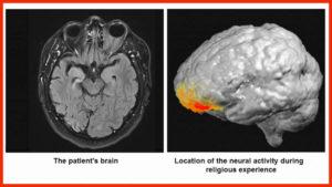 cerebro-300x169